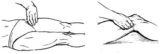 прощупывание пульса на бедренной артерии