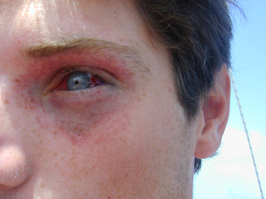 Баротравма глаз - обжим лица